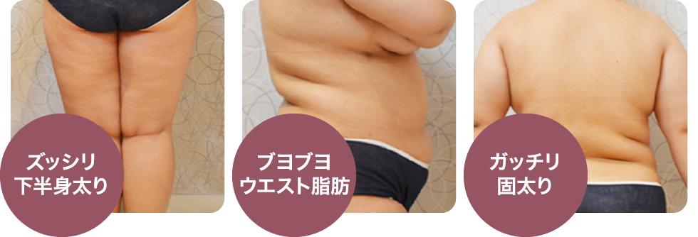 ズッシリ下半身太り/ブヨブヨウエスト脂肪/ガッチリ固太り